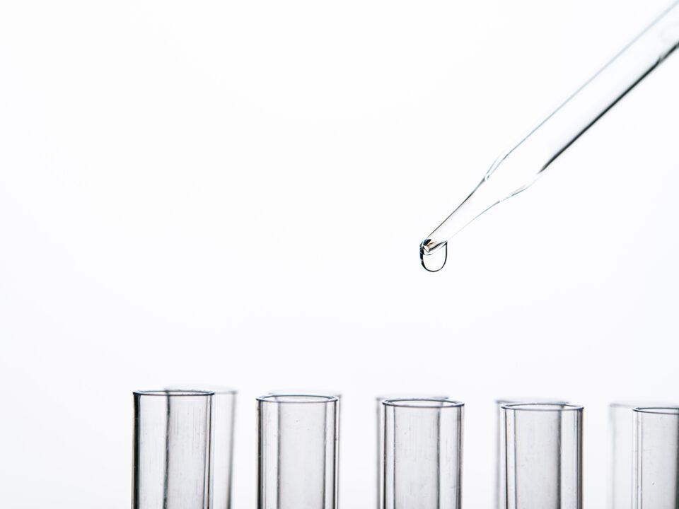 recupero delle acque
